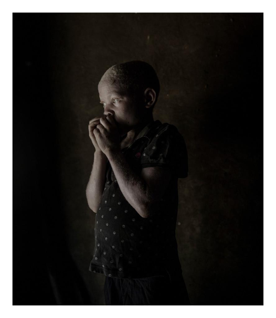 Malawi är ett av värdens fattigaste länder och extremt utsatt för klimatförändringar med torka och översvämningar. Samtidigt flyr människor in till landet från konflikter i grannländerna, framför allt från Mocambique. Situationen är också extrem för de många albinos som finns i landet de hotas av att bli mördade då deras ben och hud tros ha helande berikande krafter.